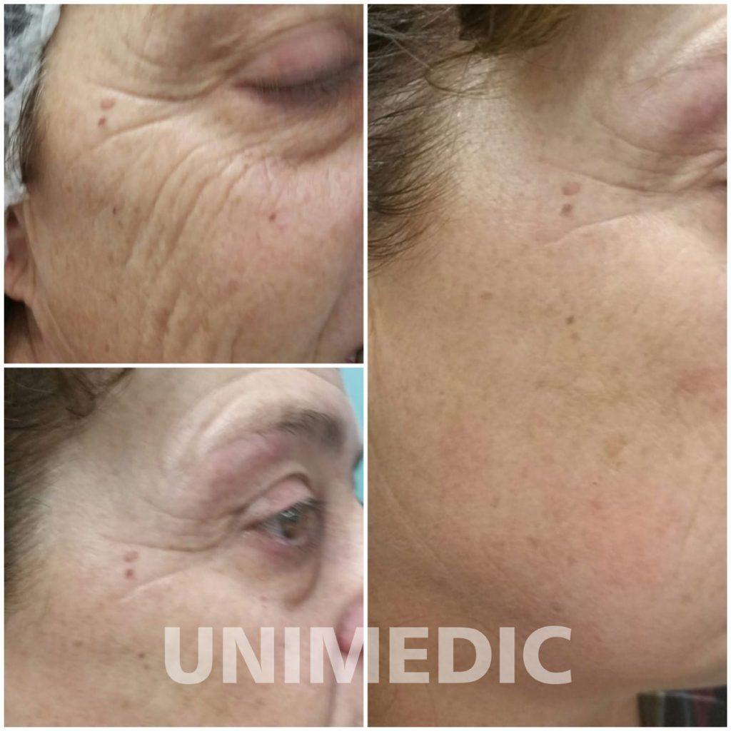 Abans i després amb Micropunció o Microneedling Unimèdic